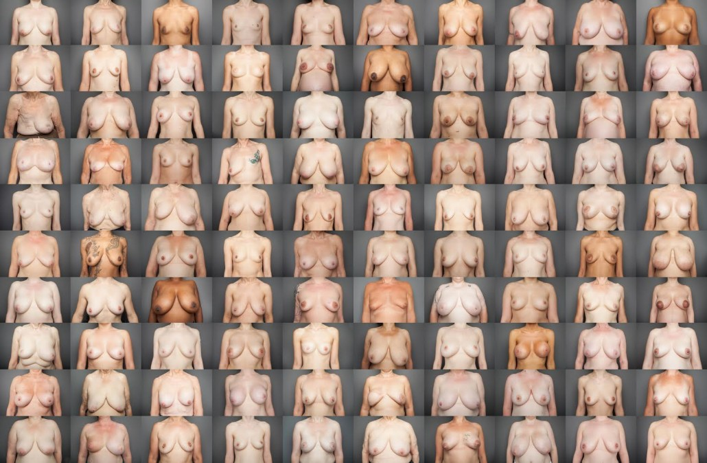 Bare Reality: 100 Women and their Breasts